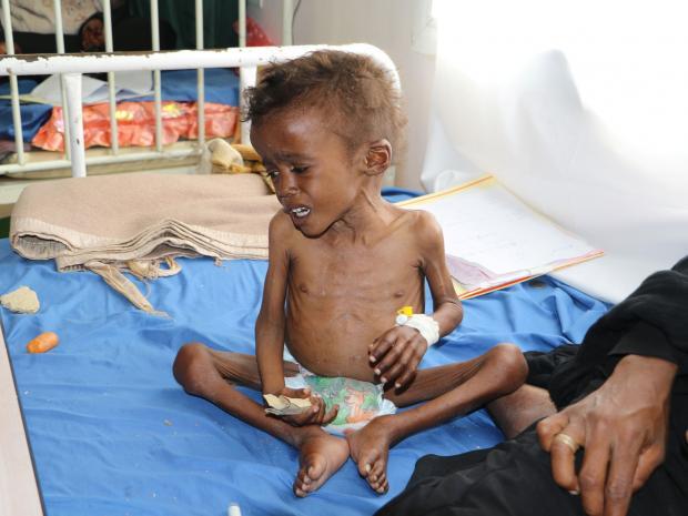 Photo of الأوروبيون ينسون المجاعة اليمنية لأنهم لا يشعرون أنها تؤثر عليهم