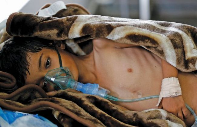 Photo of ألف طفل يمني يصابون بالكوليرا يومياً
