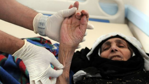 Photo of رقم قياسي للكوليرا في اليمن ..أكثر من 100ألف إصابة وقرابة الـ800حالة وفاة