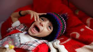 Photo of الكوليرا تقتل 924 حالة والاشتباه بنحو 135ألف حالة في 20محافظة يمنية