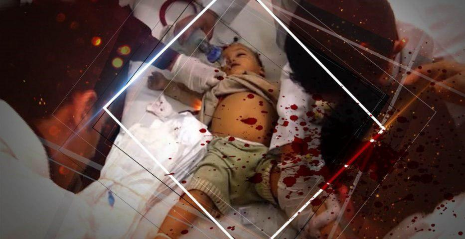 "Photo of استراليا: حملة عالمية ""لوقف الحرب على اليمن"""