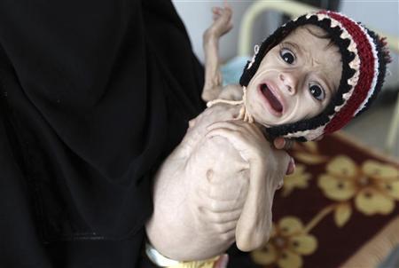 Photo of المجاعة تهدد سبعة ملايين يمني بحسب الامم المتحدة