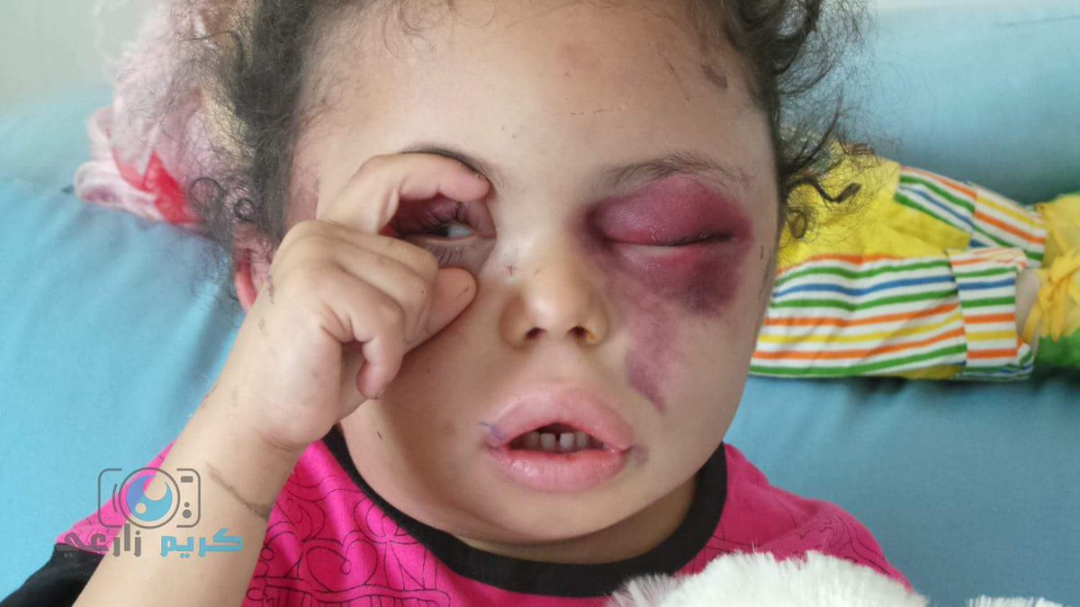 Photo of Yemeni six year old girl who lost entire family due to a Saudi airstrike