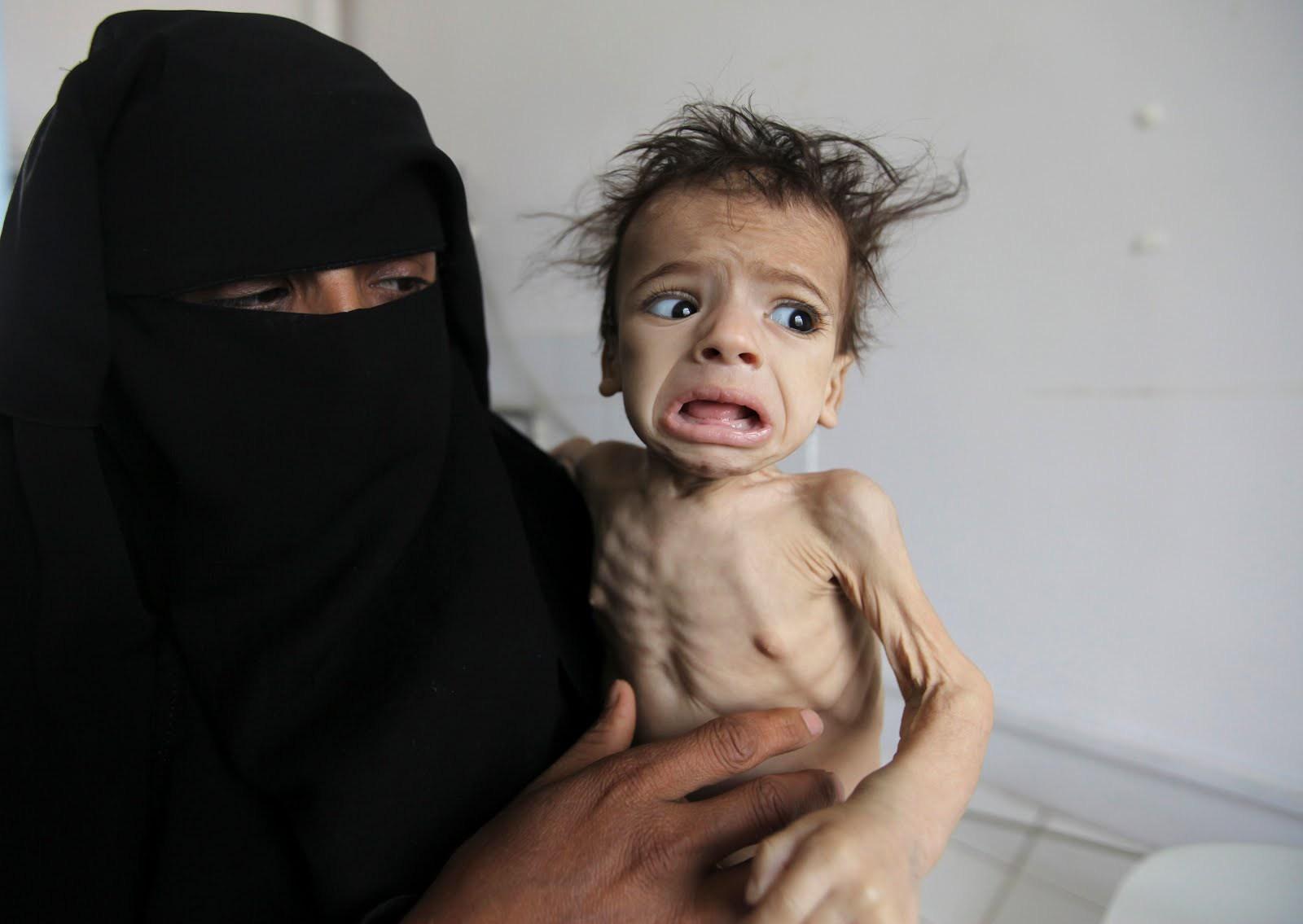 Photo of سيناتور أمريكي: السعودية تستخدم التجويع والأوبئة أسلحة حرب في اليمن