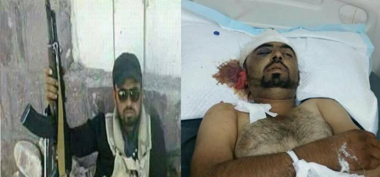 Photo of اليمن: بعد استقبالها مئات الجثث والجرحى.. مستشفيات عدن تعلن عدم قدرتها على استقبال المزيد من الجثث والجرحى