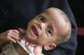 Photo of اليونيسيف تعلن عن إنقاذ 16ألف طفل مصاب بسوء التغذية في الحديدة