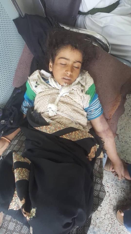 """Photo of صنعاء..القبض على والد الطفلة """"أصيلة"""""""