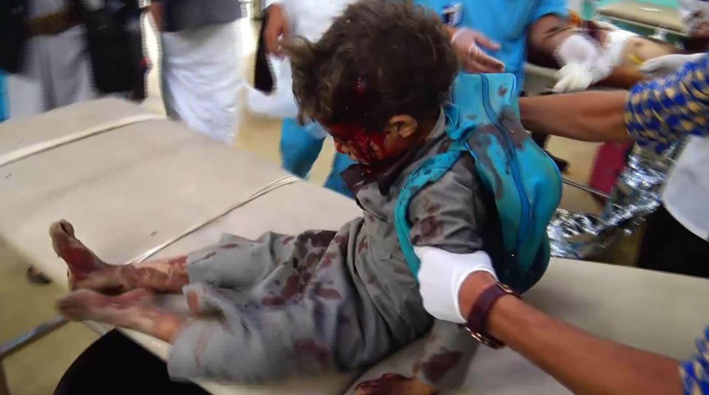 Photo of وزارة الصحة تكشف العدد الحقيقي لضحايا جريمة ضحيان