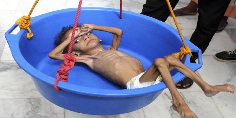 """الإندبندنت.. مخزون الطعام في اليمن """"قد ينفد خلال شهرين"""""""