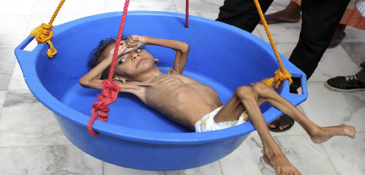 "Photo of الإندبندنت.. مخزون الطعام في اليمن ""قد ينفد خلال شهرين"""
