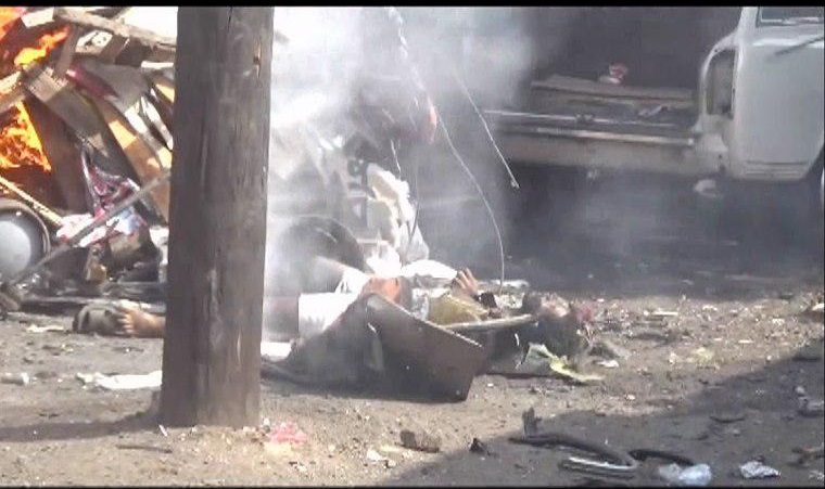 Photo of كيلو 16 بالحديدة جرائم مروعة يرتكبها التحالف بحق المدنيين