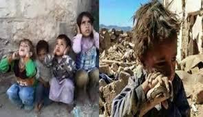 Photo of ترامب بين لعنة أطفال اليمن وطيف خاشقجي