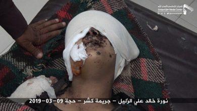Photo of مقتل وإصابة مدنيين بينهم أطفال في الحديدة