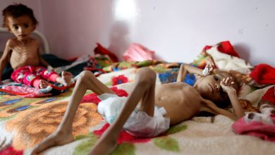 Photo of اليونيسف: أطفال اليمن من بين أكثر من 16 مليون طفل يعانون سوء التغذية