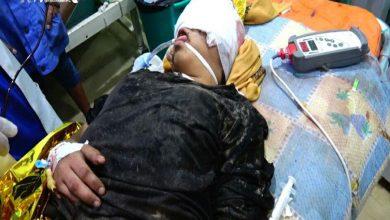 Photo of مقتل طفلة متأثرة بجراحها.. بعد قصف الجيش السعودي لمنزلها
