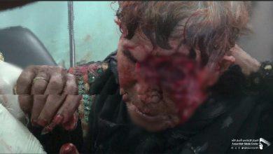Photo of إصابة امرأة مسنة.. جراء قصف صاروخي ومدفعي سعودي لمديرية رازح