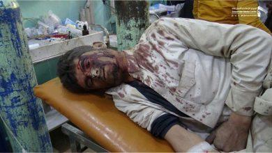 Photo of شاهد| مشاهد صادمة لقتلى وجرحى بينهم أطفال في جريمة للتحالف بصعدة